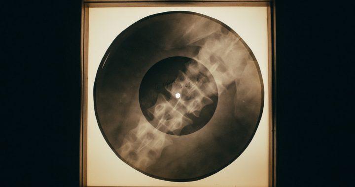 """Vinili """"sulle costole"""": quando la musica incontrò le radiografie"""